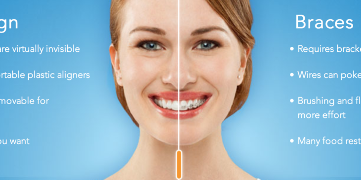 Why consider Invisalign